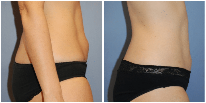 Liposuction Before and After Boston MA | Plastic Surgery
